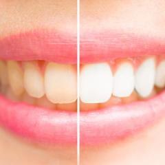 Dents saines et blanches avec un résultat visible dès les premières applications sans aucune action abrasive - Bianco Easy Dent - Easynutrition.eu