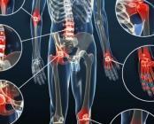 Apaiser les réactions inflammatoires et leurs conséquences sur les articulations et les tissus - Apaiser - Easynutrition.eu